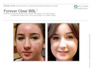 BBL Laser Acne B&A