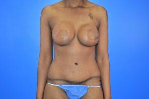 Case 1 - DIEP Flap, Implant