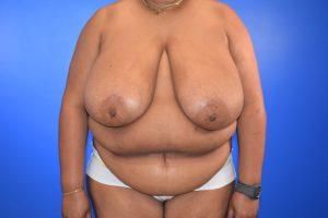 Case 19 Before - DIEP Flap, Fat Grafting