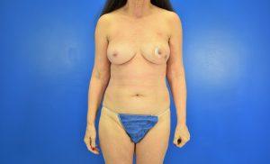 Case 2 Before DIEP Flap, Fat Grafting