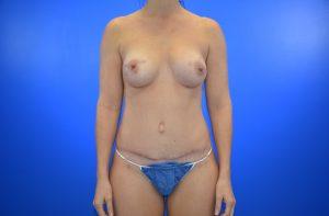 Patient 6 after_diep Flap_nipple sparing