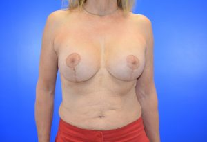 Patient 7 after_breast implant_ breast lift