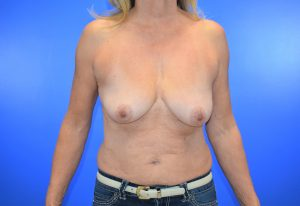 Patient 7 before_breast implant_breast lift