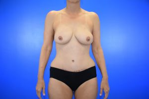 Patient 8 after _diep flap_nipple sparing