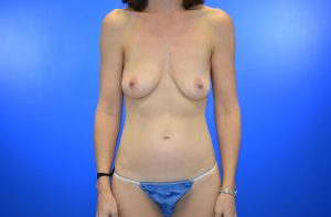 Patient 14 DIEP Flap Nipple Sparing Implant