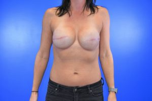 Masectomy then Silicone Implants