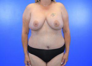 bilateral nipple sparing mastectomy
