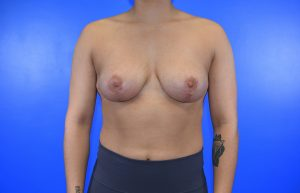 Patient 15 after breast reduction
