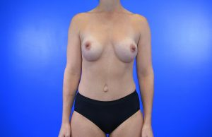 Patient 6 after update_ DIEP Flap Nipple Sparing