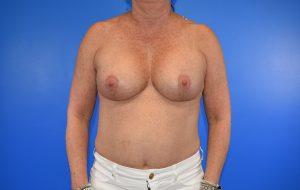breast augmentation implant after