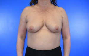 Breast Augmentation_implant before