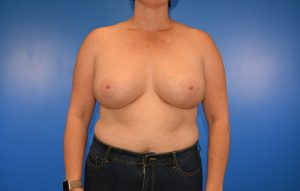 Breast Implant Removal before