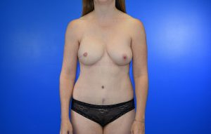 DIEP Nipple Sparing