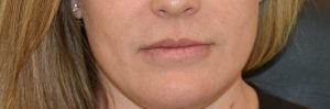 Juvederm Fill Lip before