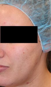 Microneedling Case 1 Before