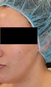 Microneedling Case 1 After