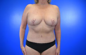 Mastopexy Abdominoplasty Case 21 after