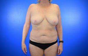 Mastopexy Abdominoplasty Case 21 before