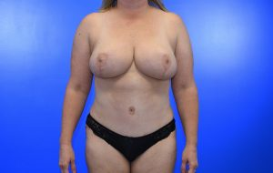 Breast Reduction Abdominoplasty after Case 24