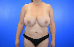 Breast Reduction Abdominoplasty before Case 24