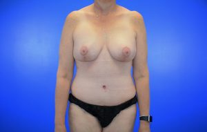 Augmentation with Mastopexy Abdominoplasty after Case 26