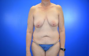 Augmentation with Mastopexy Abdominoplasty Before Case 26
