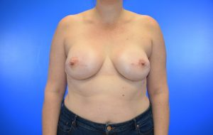 Implant, Nipple Sparing after