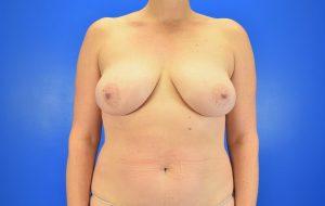 Implants, Nipple sparing before