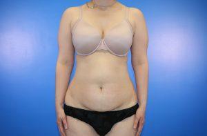 Tummy Tuck/Abdominoplasty Photo 4